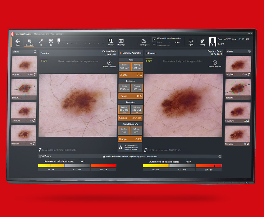 FotoFinder Systems Moleanalyzer pro, Muttermal Dokumentation